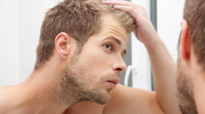 trioxidil - cheveux lutter contre
