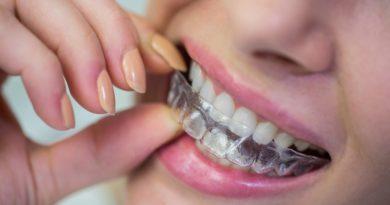 Orthodontie appareil invisible